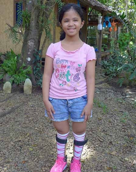 Jaira smiling with her custom-made brace called Ankle-Foot Orthosis